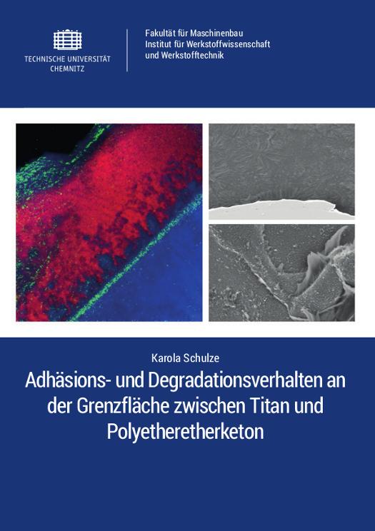 Cover: Adhäsions- und Degradationsverhalten an der Grenzfläche zwischen Titan und Polyetheretherketon